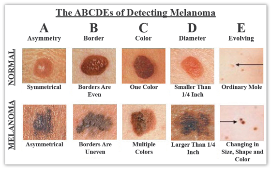 Skin Cancer- Skin Cancers ABCDEs Of Detecting Malanoma