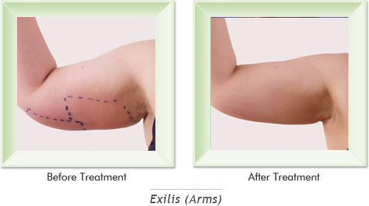Dermatologist Newport Beach - Exilis Arms Smile gallery image 1