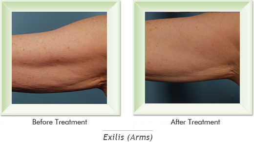 Dermatologist Newport Beach - Exilis Arms Smile gallery image 2