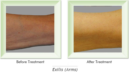 Dermatologist Newport Beach - Exilis Arms Smile gallery image 3
