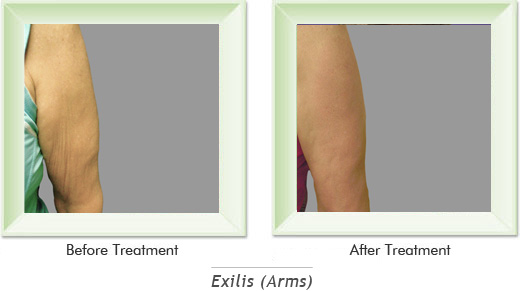 Dermatologist Newport Beach - Exilis Arms Smile gallery image 4