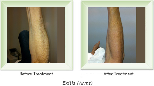 Dermatologist Newport Beach - Exilis Arms Smile gallery image 5