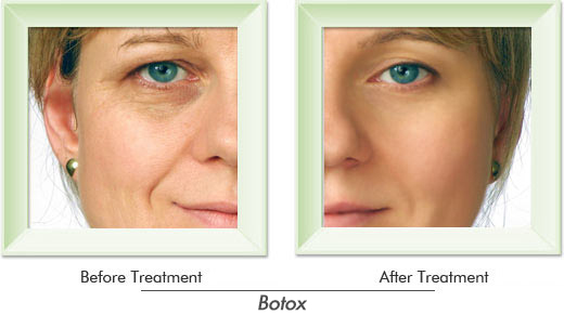 Dermatologist Newport Beach - Smile gallery image 1