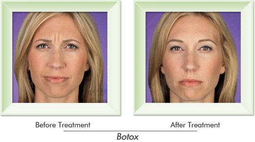 Dermatologist Newport Beach - Smile gallery image 2