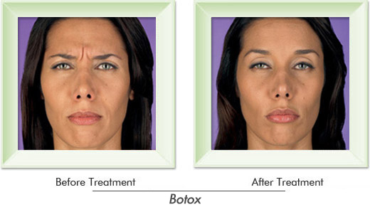 Dermatologist Newport Beach - Smile gallery image 3