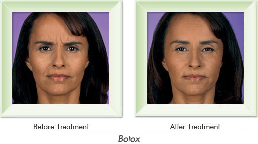 Dermatologist Newport Beach - Smile gallery image 4