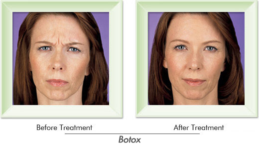Dermatologist Newport Beach - Smile gallery image 5