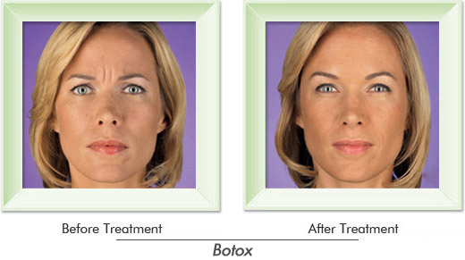 Dermatologist Newport Beach - Smile gallery image 6