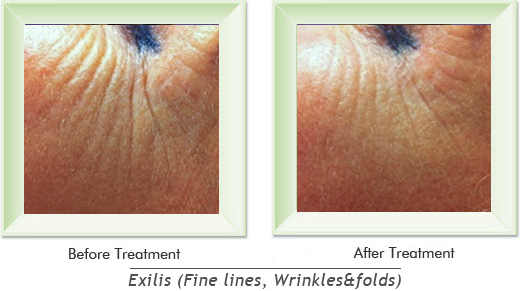 Dermatologist Newport Beach - Exilis Smile gallery image 4