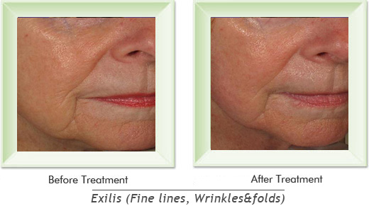 Dermatologist Newport Beach - Exilis Smile gallery image 5