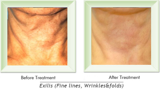 Dermatologist Newport Beach - Exilis Smile gallery image 6