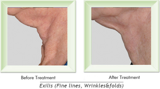 Dermatologist Newport Beach - Exilis Smile gallery image 7