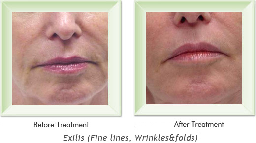 Dermatologist Newport Beach - Exilis Smile gallery image 8