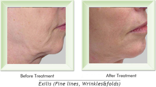 Dermatologist Newport Beach - Exilis Smile gallery image 9