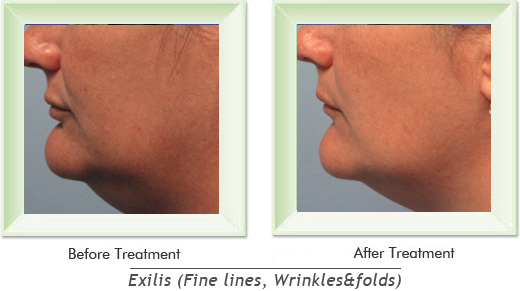 Dermatologist Newport Beach - Exilis Smile gallery image 10