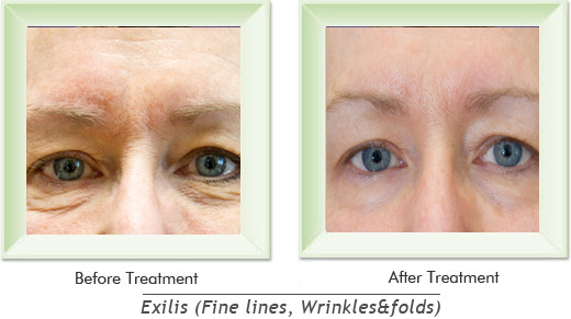 Dermatologist Newport Beach - Exilis Smile gallery image 13