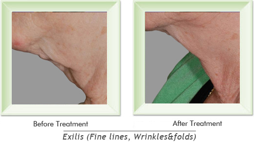 Dermatologist Newport Beach - Exilis Smile gallery image 14