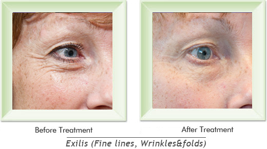 Dermatologist Newport Beach - Exilis Smile gallery image 15