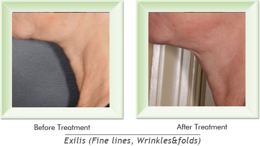 Dermatologist Newport Beach - Exilis Smile gallery image 16