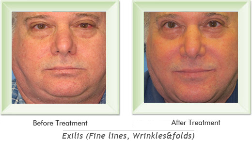 Dermatologist Newport Beach - Exilis Smile gallery image 17