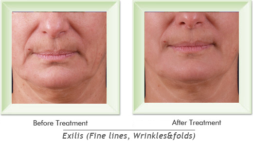 Dermatologist Newport Beach - Exilis Smile gallery image 1