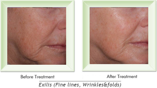 Dermatologist Newport Beach - Exilis Smile gallery image 2