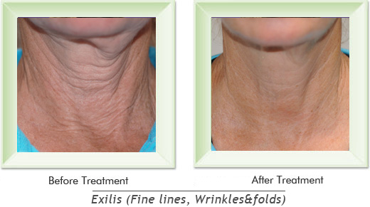 Dermatologist Newport Beach - Exilis Smile gallery image 3