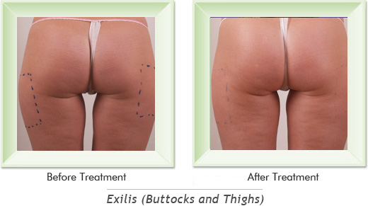 Exilis Newport Beach - Exilis Buttocks Smile gallery image 1