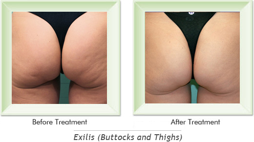 Exilis Newport Beach - Exilis Buttocks Smile gallery image 2