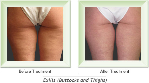 Exilis Newport Beach - Exilis Buttocks Smile gallery image 3