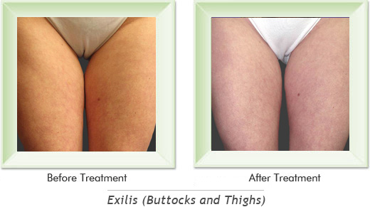 Exilis Newport Beach - Exilis Buttocks Smile gallery image 4