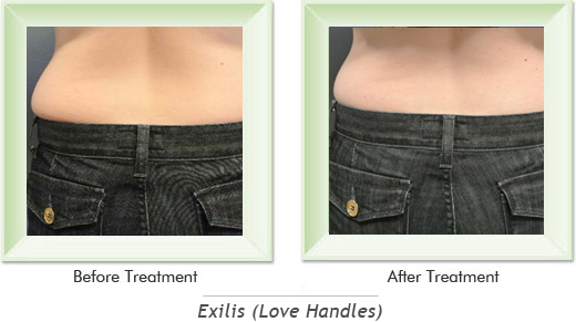 Dermatologist Newport Beach - Exilis Love Handles Smile gallery image 1