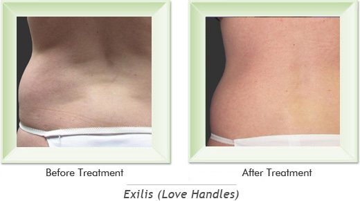 Dermatologist Newport Beach - Exilis Love Handles Smile gallery image 2