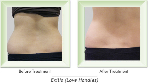 Dermatologist Newport Beach - Exilis Love Handles Smile gallery image 3