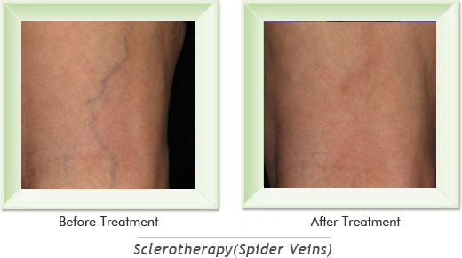 Dermatologist Newport Beach - Sclerotherapy Smile gallery image 4