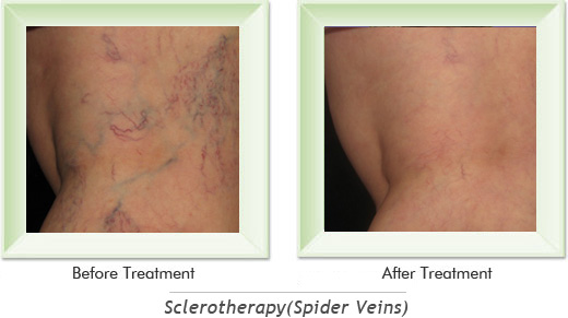 Dermatologist Newport Beach - Sclerotherapy Smile gallery image 5
