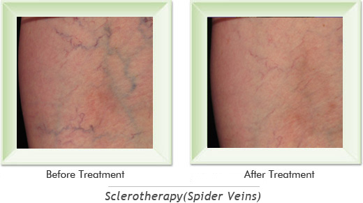 Dermatologist Newport Beach - Sclerotherapy Smile gallery image 6